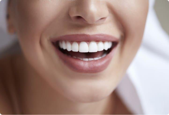自信の持てる笑顔になれるホワイトニング