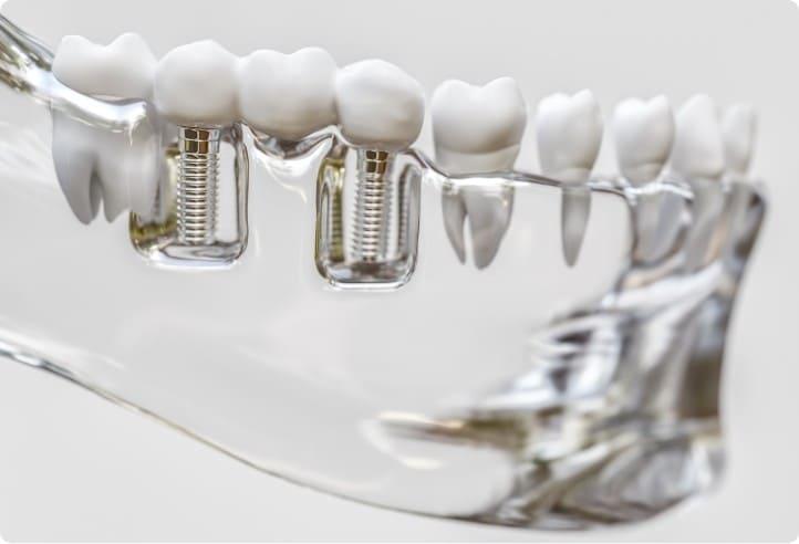 自分の歯のように噛める!インプラント治療