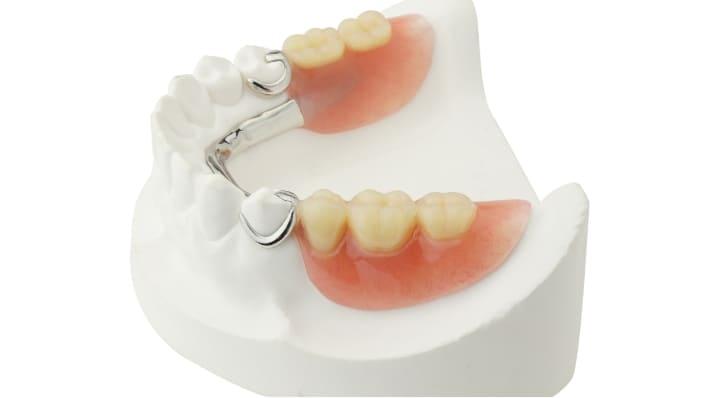 欠損歯が少ないときの部分入れ歯