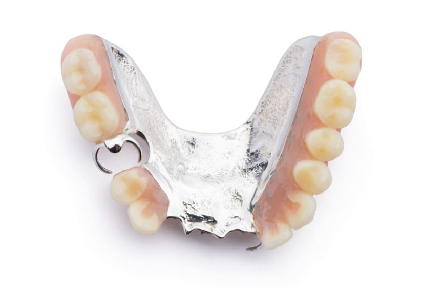 金属床と強化プラスチックの入れ歯