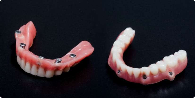 磁石でピッタリ固定するマグネット義歯