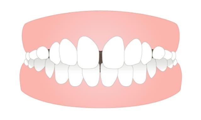 すきっ歯 (空隙歯列/スペーシング)