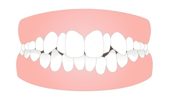 軽度のガタガタ歯並びや八重歯 (叢生)