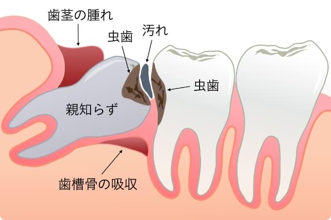 智歯周囲炎(ちししゅういえん)