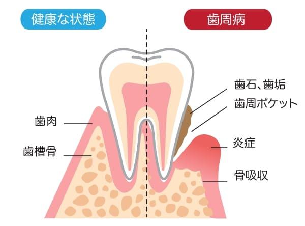 親知らずまわりが歯周病の場合