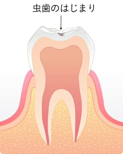初期段階の虫歯CO