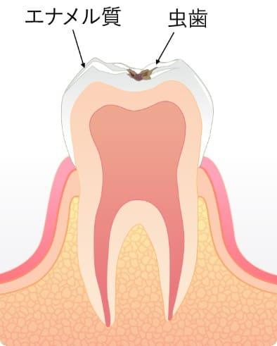 エナメル質に到達した虫歯C1