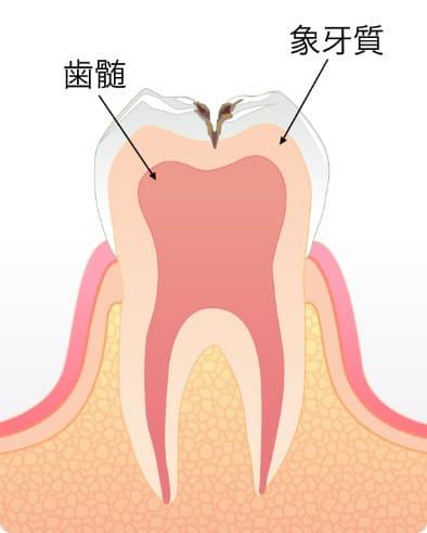 柔らかい象牙質に到達した虫歯C2