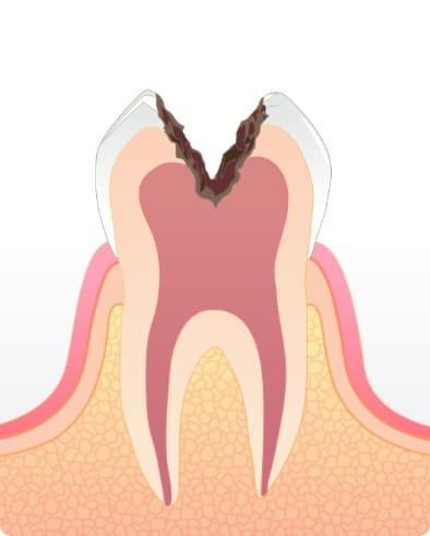 神経に到達した虫歯C3