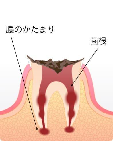 根に到達した末期の虫歯C4
