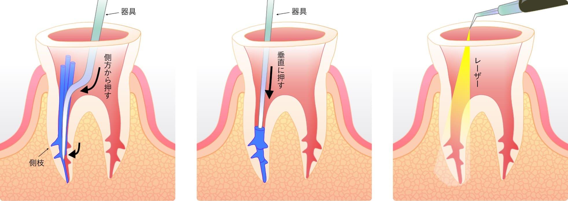 当院で行う根管治療には『垂直加圧充填(バーチカル)』や『側方加圧充填(ラテラル)』の他、レーザー治療があります。